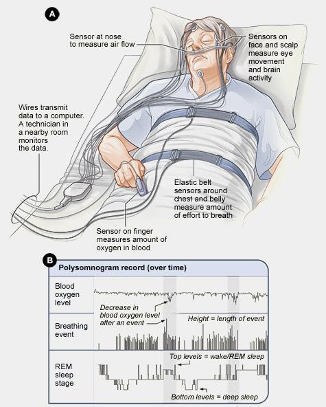 polysomnography-a-sleep-study